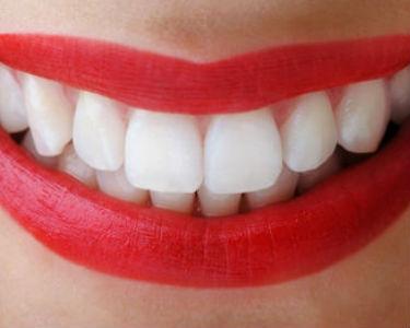 Dişlerinizdeki renk değişimi neyi gösteriyor?