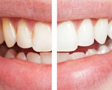 Evde diş beyazlatma tehlike saçıyor!