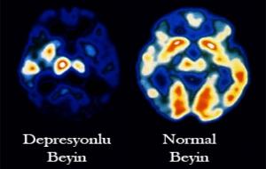 Depresyon Beyin Hücrelerini Öldürüyor